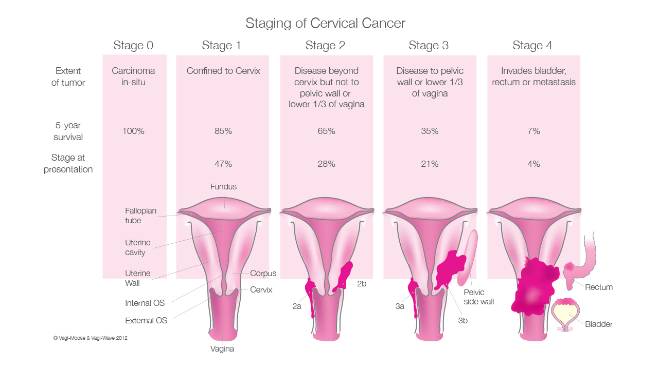 Breast Cancer Stage 4